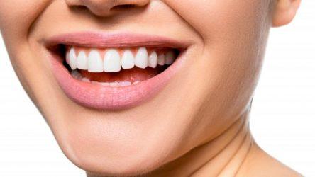 ¿Para qué sirve una funda dental?