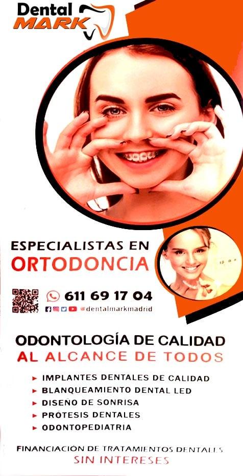 Ortodoncia en Madrid